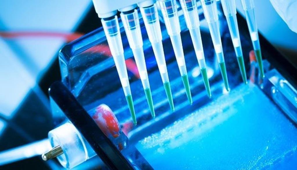 По прогнозам специалистов, мировой рынок диагностики in vitro будет расти в период между 2017 и 2025 годами и к концу 2025 года достигнет почти 90 миллиардов долларов США (фото любезно предоставлено iStock).