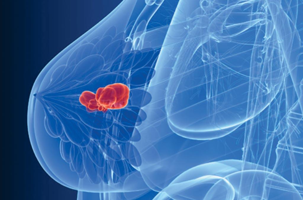 Анализ крови Natera выявляет рецидивы рака молочной железы (фото любезно предоставлено Университетом Лестера).