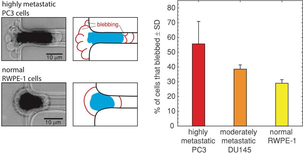 Слева: изображения блеббинга клетки высокометастатического рака предстательной железы РС3 (вверху) и нормальная клетка предстательной железы (без пузырьков) RWPE-1, подаваемые в микрофлюидный канал. Середина: контуры изображений слева подчеркивают блеббинг и деформацию клетки. Справа: процент высокометастатических клеток PC3, умеренно метастатических клеток DU145 и нормальных клеток RWPE-1, которые пузырились, будучи пропущенными через канал вместе со стандартным отклонением (SD). Фото любезно предоставлено Фазлом Хуссейном (Fazle Hussain), Техасский технический университет.