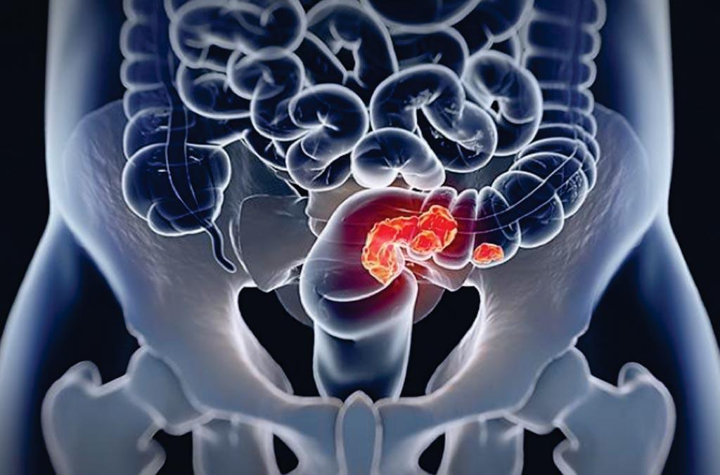 Выявление консенсусного молекулярного подтипа (Consensus Molecular Subtype, CMS) у пациента с метастатическим колоректальным раком может помочь онкологам определить наиболее эффективный курс лечения (фото любезно предоставлено Университетом Южной Калифорнии).