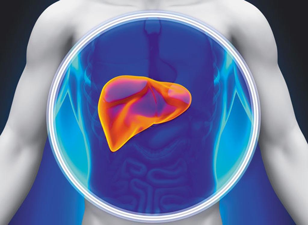 Новое исследование показало, что циркулирующие уровни ДМГВ были связаны с развитием диабета II типа за 12 лет до начала заболевания (фото любезно предоставлено iStock).